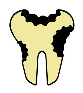 虫歯のイラスト素材 [FYI03457650]