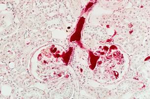 Kidneyの写真素材 [FYI03462652]