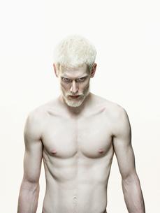 Albino manの写真素材 [FYI03463143]
