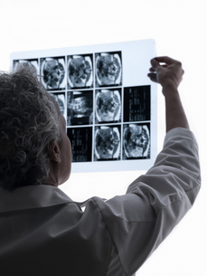 Doctor with mri scanの写真素材 [FYI03466101]
