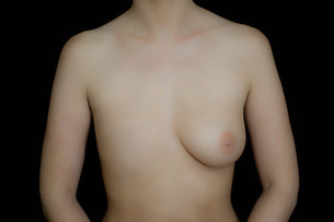 Naked female body with one breast against black backgroundの写真素材 [FYI03480602]