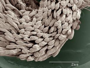 Coloured SEM of crayfish gillsの写真素材 [FYI03511822]