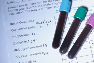Blood tubes on the results of blood testing, including testing for cholesterol. Such testing is doneの写真素材 [FYI03515848]