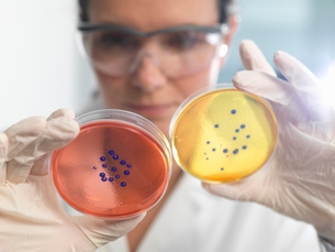 Scientist examining set of petri dishes in microbiology labの写真素材 [FYI03522489]