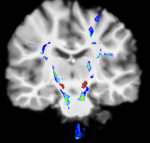 Coronal view of a human brain in Parkinson's disease. Blue/green areas highlight fibers of the motorの写真素材 [FYI03523343]