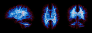 Sagittal, axial, coronal views of a full brain human connections. The images are colored by fiber deの写真素材 [FYI03523352]