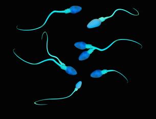 Illustration of abnormalities and deformities of human sperm cellsのイラスト素材 [FYI03526063]