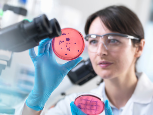 Scientist examining petri dish containing bacterial culture grown in laboratoryの写真素材 [FYI03552708]