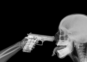 X ray of a hand pointing a handgun at someones headの写真素材 [FYI03553980]