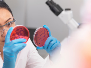 Scientist examining microbiological cultures in a petri dishの写真素材 [FYI03554809]