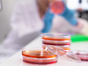 Scientist examining microbiological cultures in a petri dishの写真素材 [FYI03554810]