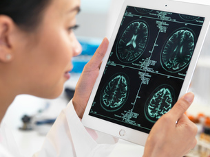 Doctor viewing CT scan result of brain on digital tablet for abnormalitiesの写真素材 [FYI03554864]