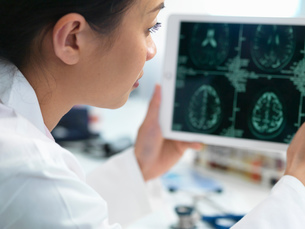 Doctor viewing CT scan result of brain on digital tablet for abnormalitiesの写真素材 [FYI03554865]