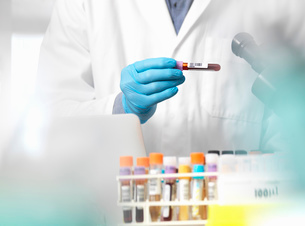 Scientist checking blood sample information ready for clinical testing in a laboratoryの写真素材 [FYI03570419]