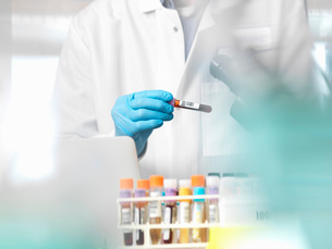 Scientist checking blood sample information ready for clinical testing in a laboratoryの写真素材 [FYI03570420]
