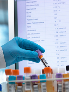 Medical Testing, Haematologist checking medical samples including blood for testing with results onの写真素材 [FYI03570480]