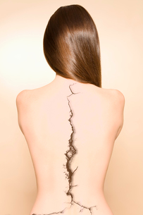 Bare back of woman with a crack on spine over colored backgrの写真素材 [FYI03640939]