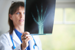 Doctor looking at xray image of handの写真素材 [FYI03800594]