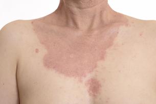 皮膚病の日本人女性の胸の写真素材 [FYI03810486]