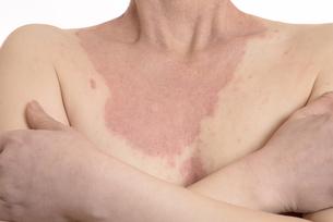 皮膚病の日本人女性の胸の写真素材 [FYI03810490]