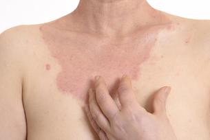 皮膚病の日本人女性の胸の写真素材 [FYI03810497]