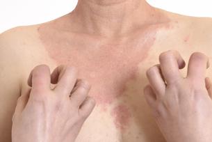 皮膚病の日本人女性の胸の写真素材 [FYI03810505]