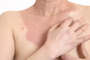 皮膚病の日本人女性の胸の写真素材 [FYI03810506]