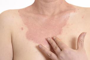 皮膚病の日本人女性の胸の写真素材 [FYI03810508]