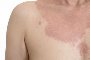 皮膚病の日本人女性の胸の写真素材 [FYI03810510]