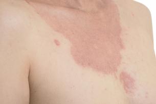 皮膚病の日本人女性の胸の写真素材 [FYI03810511]