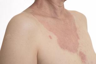 皮膚病の日本人女性の胸の写真素材 [FYI03810512]
