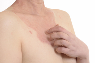 皮膚病の日本人女性の胸の写真素材 [FYI03810526]