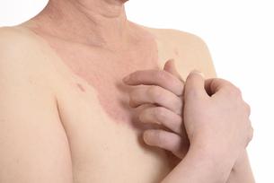 皮膚病の日本人女性の胸の写真素材 [FYI03810531]