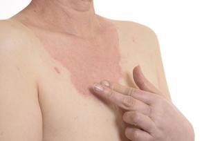 皮膚病の日本人女性の胸の写真素材 [FYI03810532]