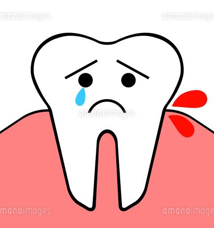 歯周病のイラスト素材 [FYI03816716]