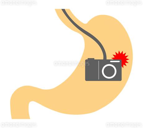 胃カメラのイラスト素材 [FYI03816798]