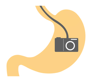 胃カメラのイラスト素材 [FYI03816799]