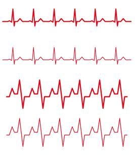 心電図のイラストセットのイラスト素材 [FYI03826658]