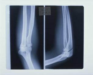 レントゲン写真 右手関節の写真素材 [FYI04011404]