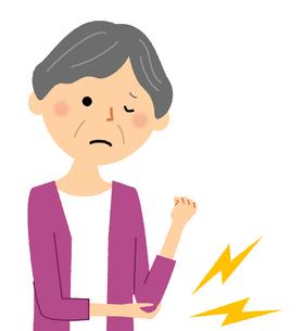 シニア女性 肘の痛みのイラスト素材 [FYI04105836]