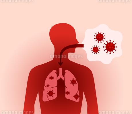 コロナウイルスと肺の人体図のイラスト素材 [FYI04118639]