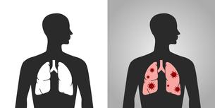ウイルスと肺の人体図のイラスト素材 [FYI04118640]