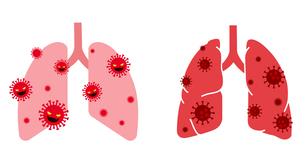ウイルスと肺の図のイラスト素材 [FYI04118986]