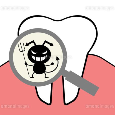 ルーペに映る虫歯菌のイラスト素材 [FYI04130676]