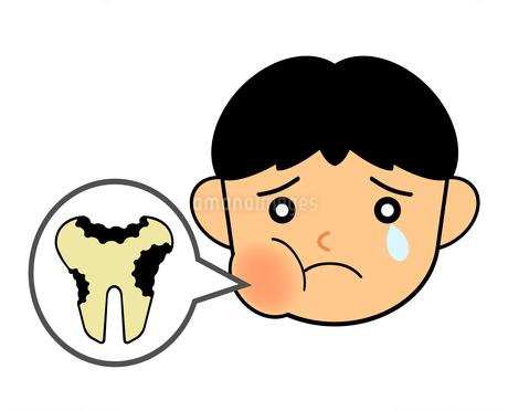 虫歯に苦しむ子供のイラスト素材 [FYI04130757]