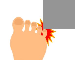 角にぶつかる足の小指のイラスト素材 [FYI04130922]