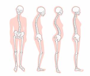 悪い姿勢のパターン 骨格とシルエットのイラスト素材 [FYI04309489]
