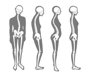 悪い姿勢のパターン 骨格とシルエットのイラスト素材 [FYI04309490]