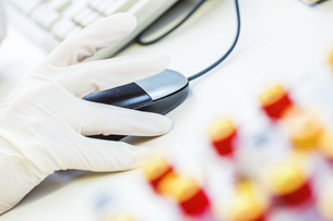 Blood samples and hand with protective glove using computerの写真素材 [FYI04337441]