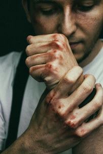 Close-up Of Man With Injury On Fistの写真素材 [FYI04407312]